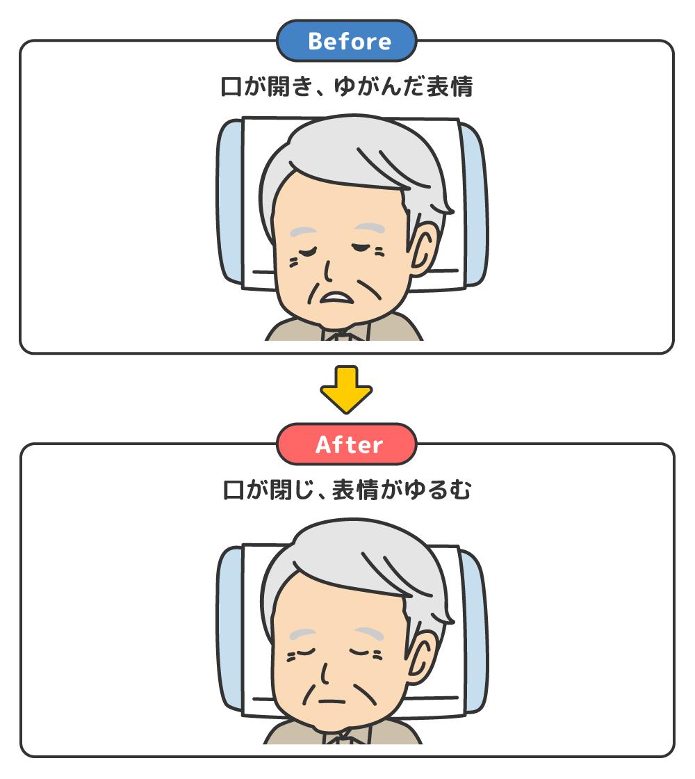 ポジショニング 褥瘡 予防
