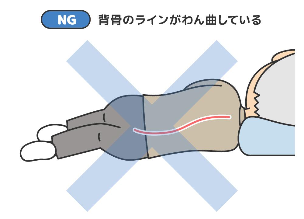 予防 ポジショニング 褥瘡
